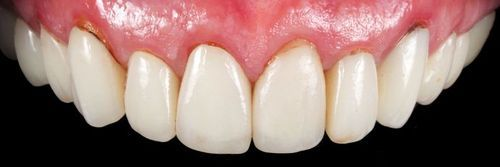 dientes sin zirconio