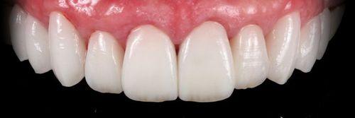dientes con zirconio