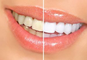 dienteblanco